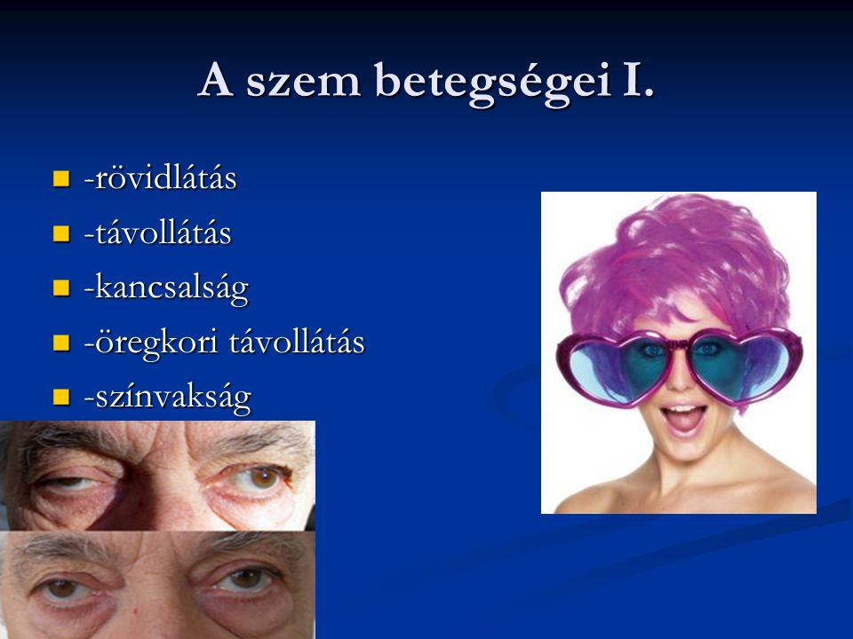 A szem betegségei I.  -rövidlátás  -távollátás  -kancsalság  -öregkori távollátás  -színvakság