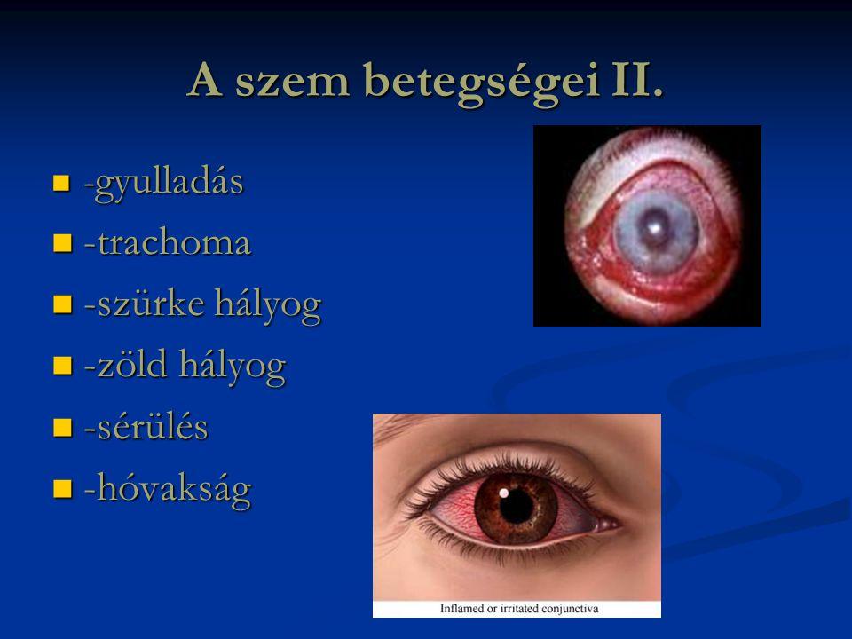 A szem betegségei II.  - gyulladás  -trachoma  -szürke hályog  -zöld hályog  -sérülés  -hóvakság