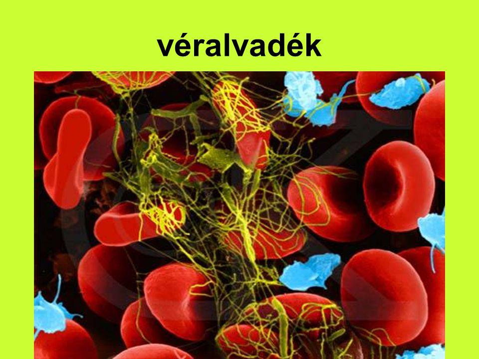 véralvadék