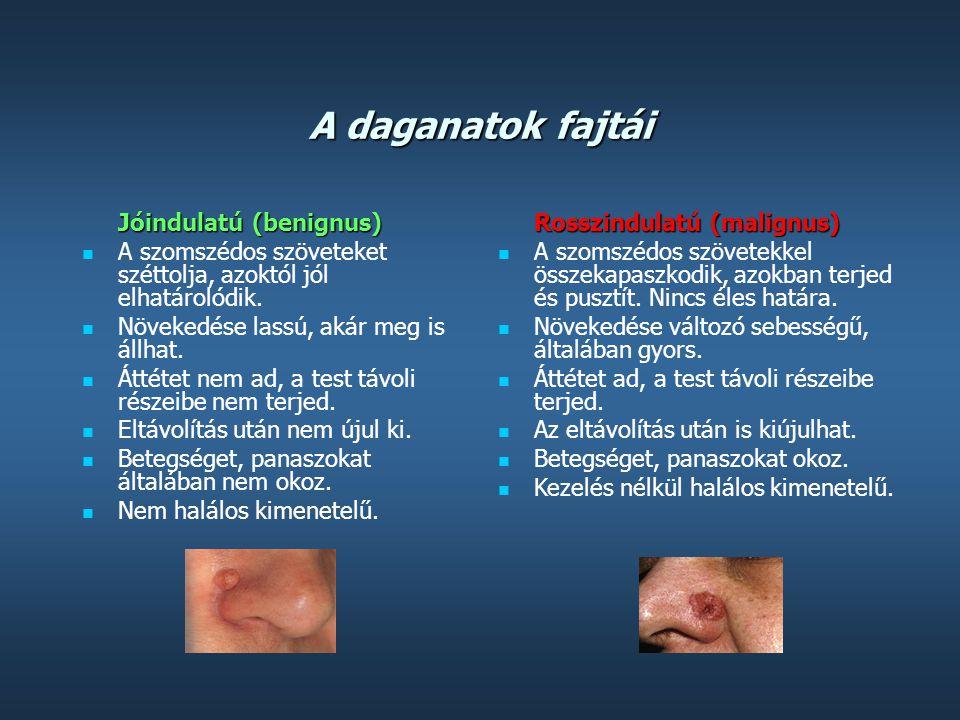 A daganatok fajtái Jóindulatú (benignus)  A szomszédos szöveteket széttolja, azoktól jól elhatárolódik.