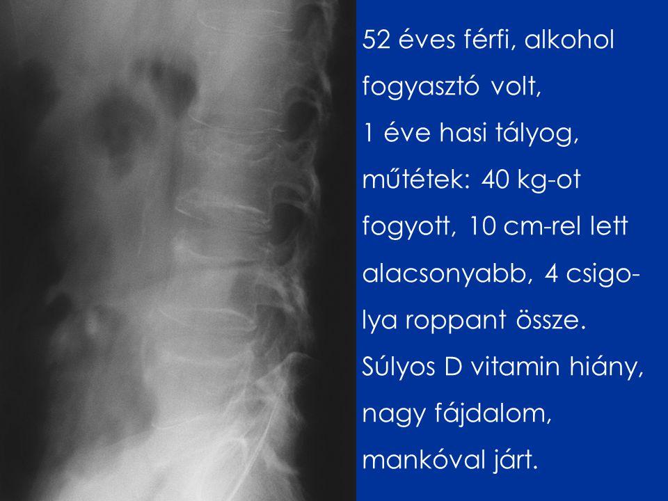 52 éves férfi, alkohol fogyasztó volt, 1 éve hasi tályog, műtétek: 40 kg-ot fogyott, 10 cm-rel lett alacsonyabb, 4 csigo- lya roppant össze.