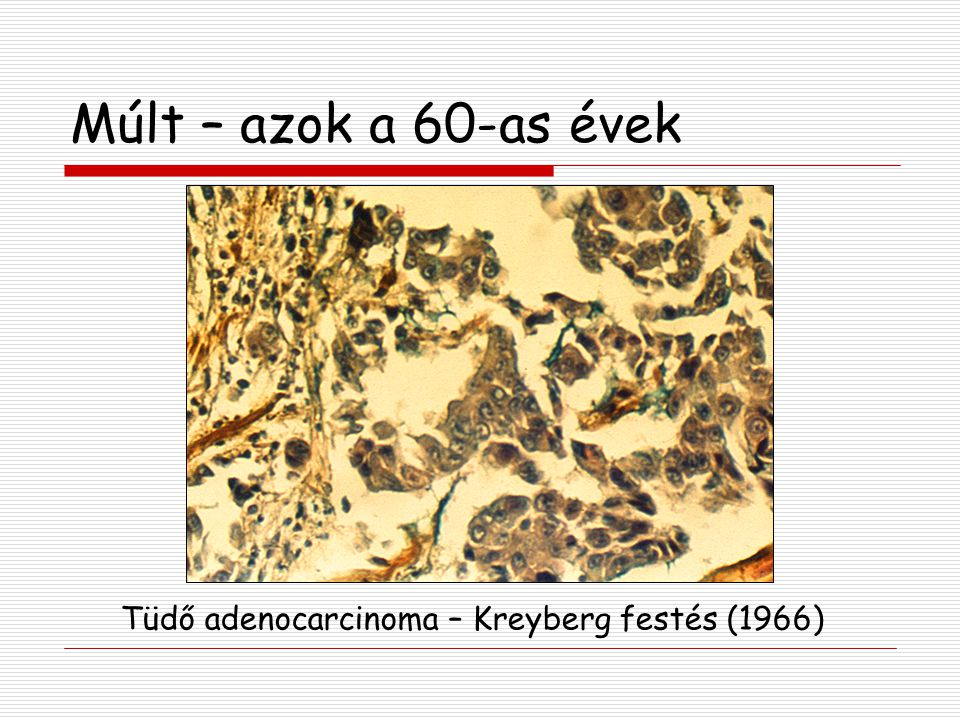 Múlt – azok a 60-as évek Tüdő adenocarcinoma – Kreyberg festés (1966)