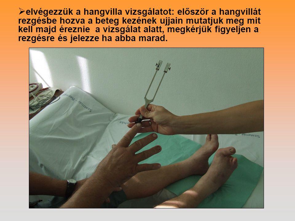  elvégezzük a hangvilla vizsgálatot: először a hangvillát rezgésbe hozva a beteg kezének ujjain mutatjuk meg mit kell majd éreznie a vizsgálat alatt,