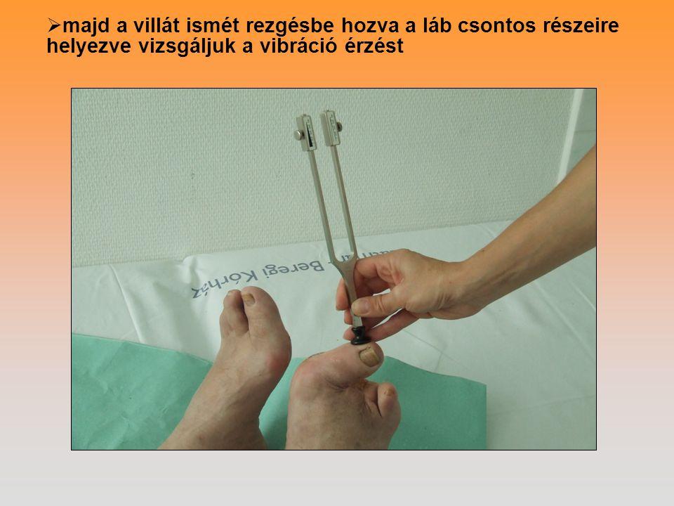  majd a villát ismét rezgésbe hozva a láb csontos részeire helyezve vizsgáljuk a vibráció érzést