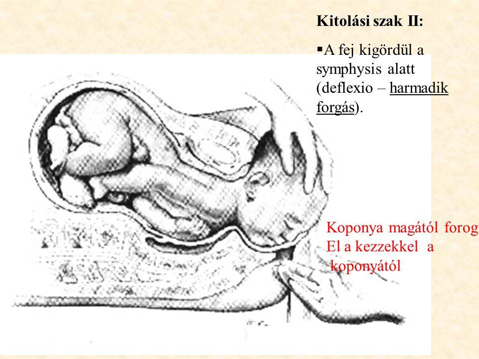 Kitolási szak II:  A fej kigördül a symphysis alatt (deflexio – harmadik forgás). Koponya magától forog El a kezzekkel a koponyától
