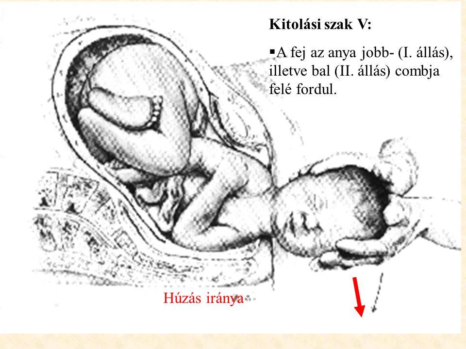 Kitolási szak V:  A fej az anya jobb- (I. állás), illetve bal (II. állás) combja felé fordul. Húzás iránya
