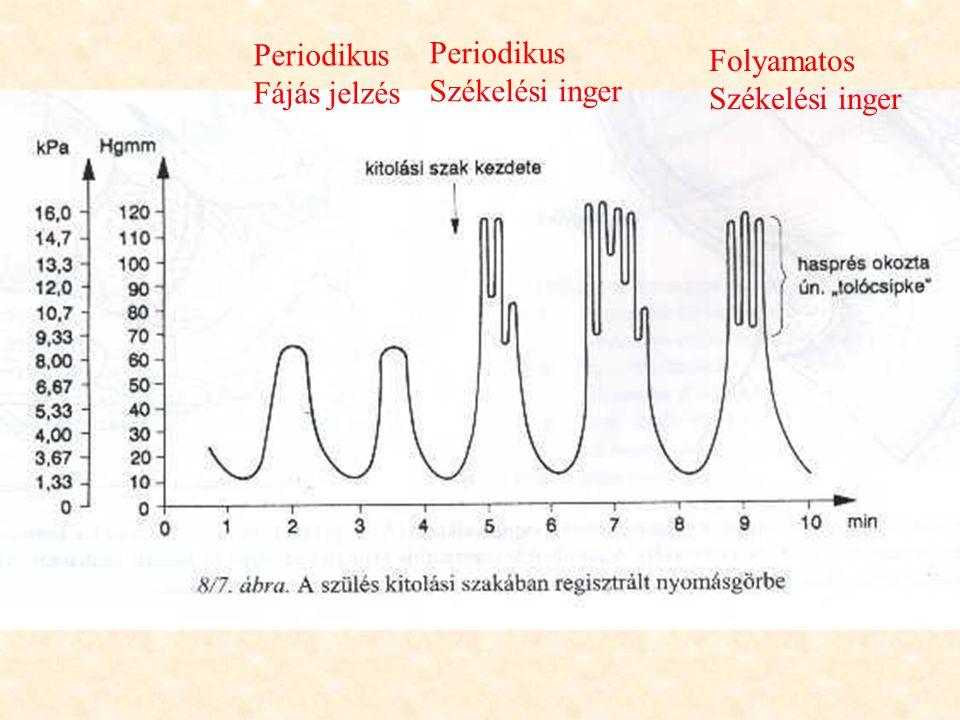 Periodikus Fájás jelzés Periodikus Székelési inger Folyamatos Székelési inger