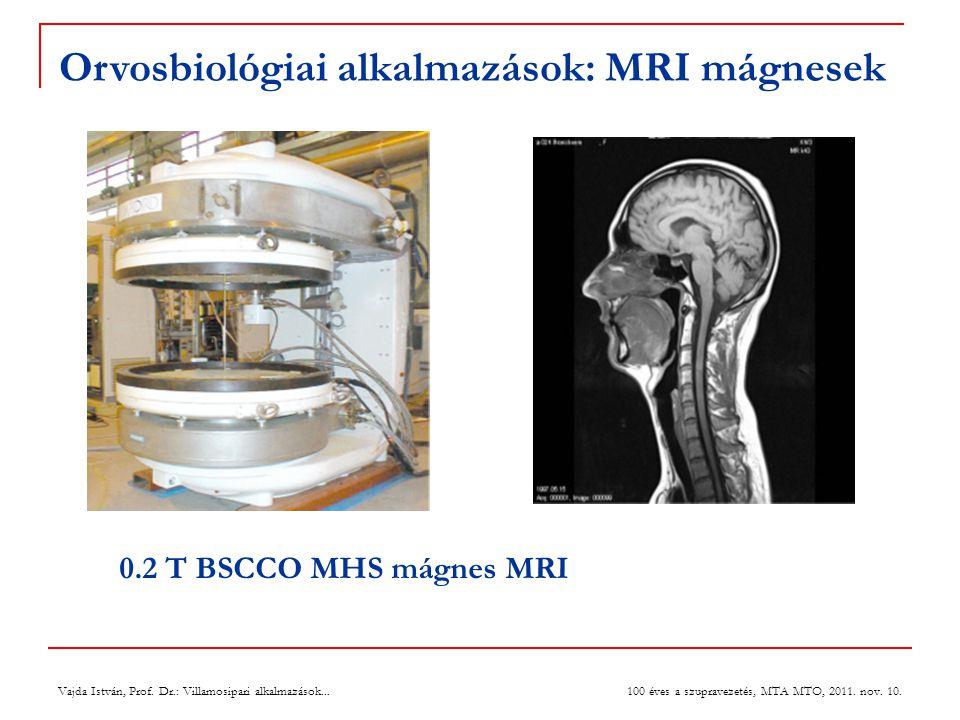 Vajda István, Prof. Dr.: Villamosipari alkalmazások... 100 éves a szupravezetés, MTA MTO, 2011. nov. 10. 0.2 T BSCCO MHS mágnes MRI Orvosbiológiai alk