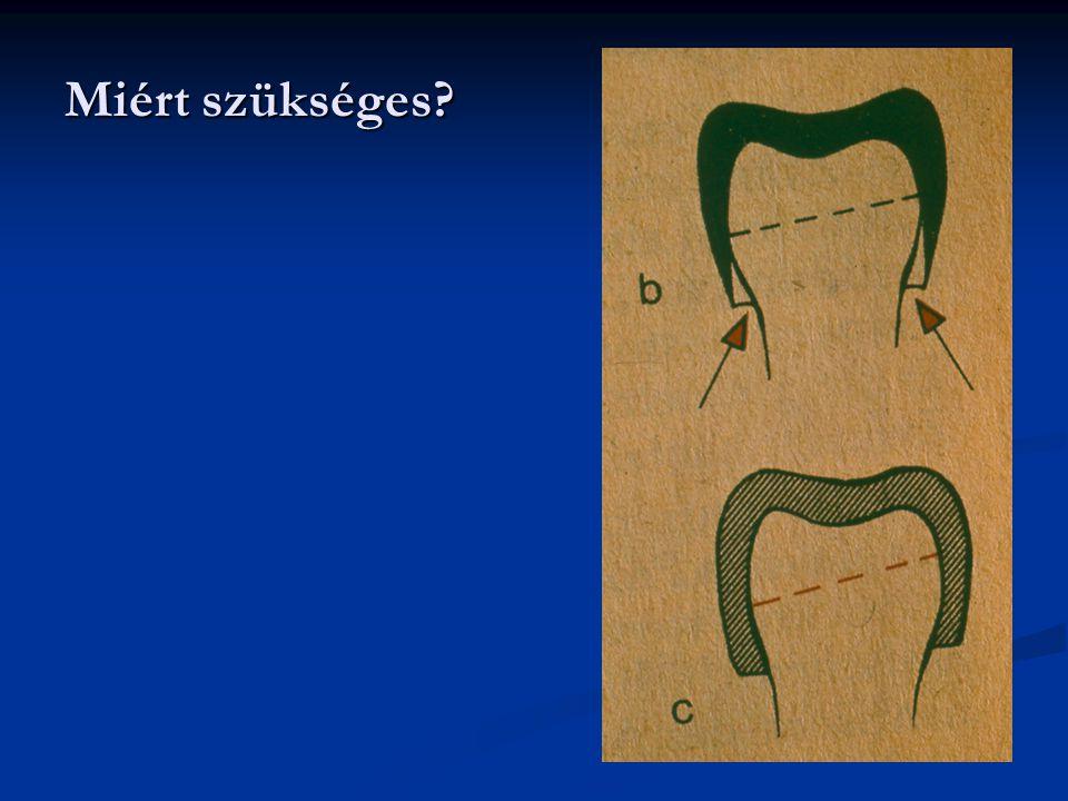A fogelőkészítés, preparáció, általános szempontjai: - A lehető legkevesebb, csak a feltétlenül szükséges fogállomány feláldozása - A fogmű retenciójának biztosítása - Egyértelmű határral végződjön - Ne károsítsa a pulpát, marginális parodontiumot - Fájdalom mentesen történjen - Ne károsítsa a környező képleteket (lágyrészvédelem) - Megfelelő eredménnyel záruljon (ellenőrzés )