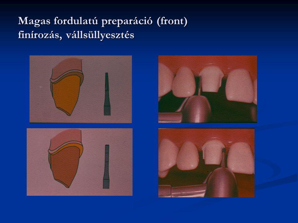 Magas fordulatú preparáció (front) finírozás, vállsüllyesztés
