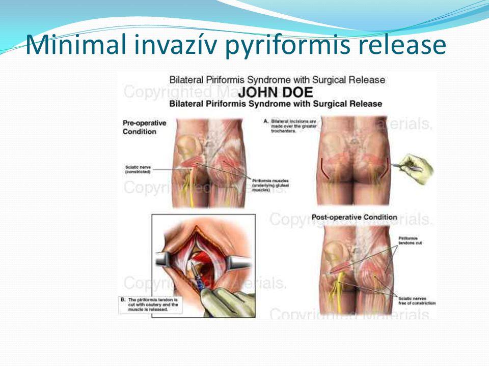 Minimal invazív pyriformis release