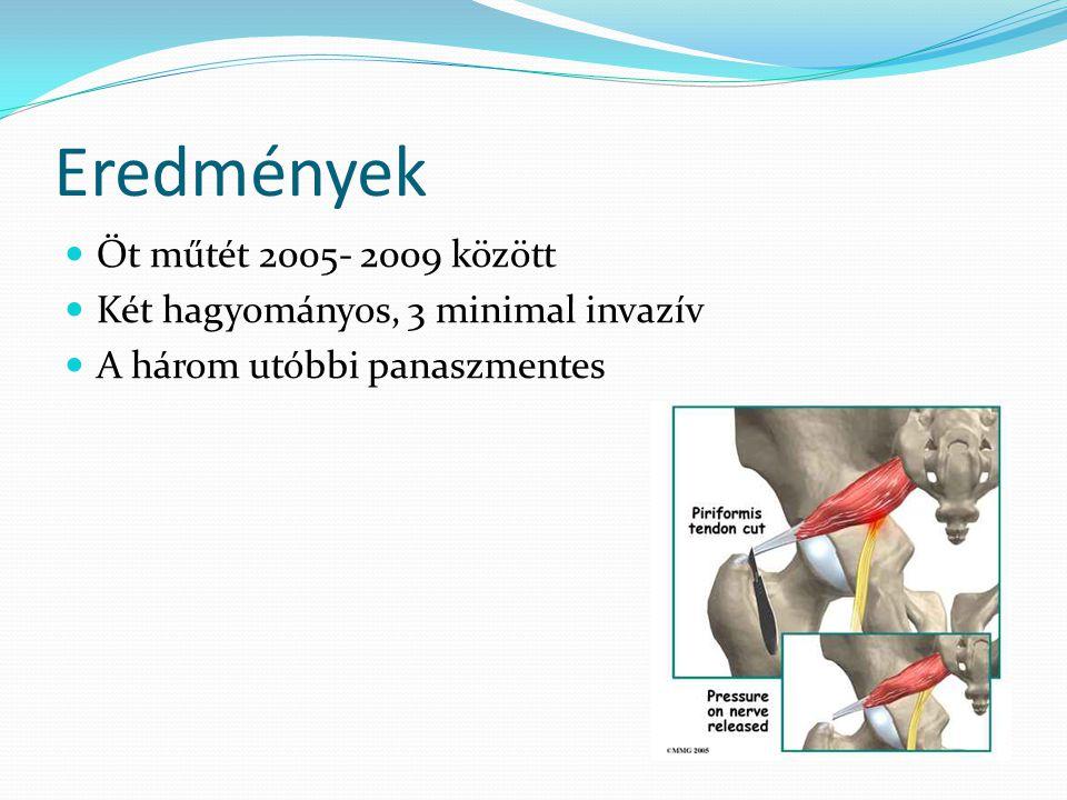 Eredmények  Öt műtét 2005- 2009 között  Két hagyományos, 3 minimal invazív  A három utóbbi panaszmentes