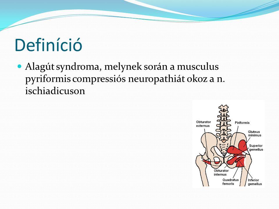 Definíció  Alagút syndroma, melynek során a musculus pyriformis compressiós neuropathiát okoz a n. ischiadicuson