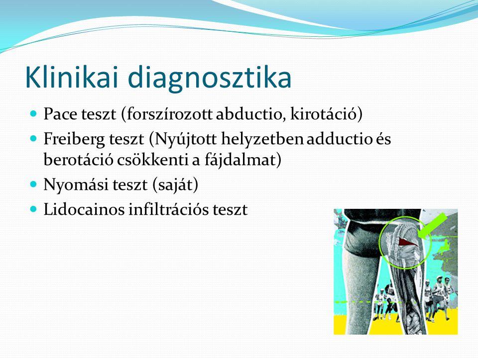 Klinikai diagnosztika  Pace teszt (forszírozott abductio, kirotáció)  Freiberg teszt (Nyújtott helyzetben adductio és berotáció csökkenti a fájdalma