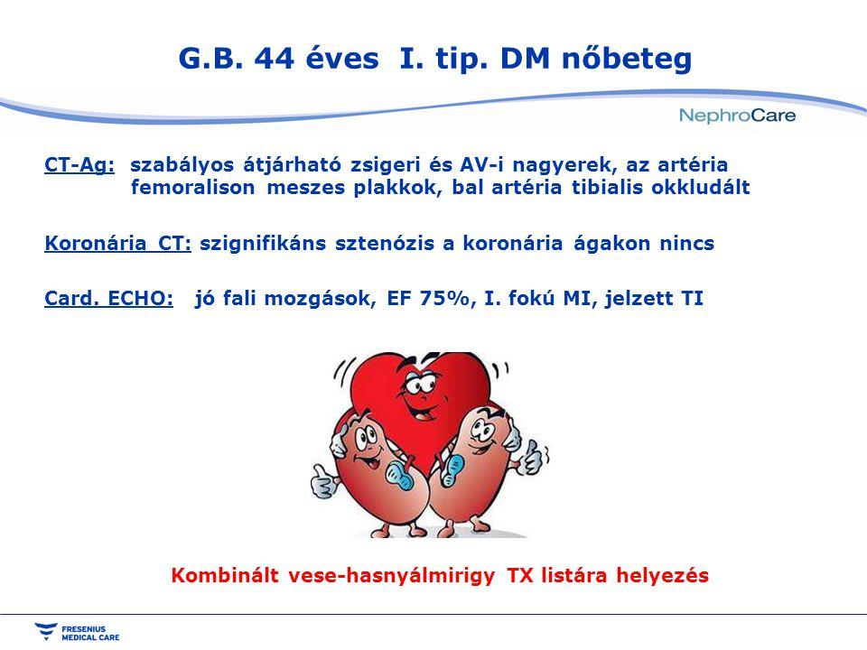 G.B. 44 éves I. tip. DM nőbeteg CT-Ag: szabályos átjárható zsigeri és AV-i nagyerek, az artéria femoralison meszes plakkok, bal artéria tibialis okklu
