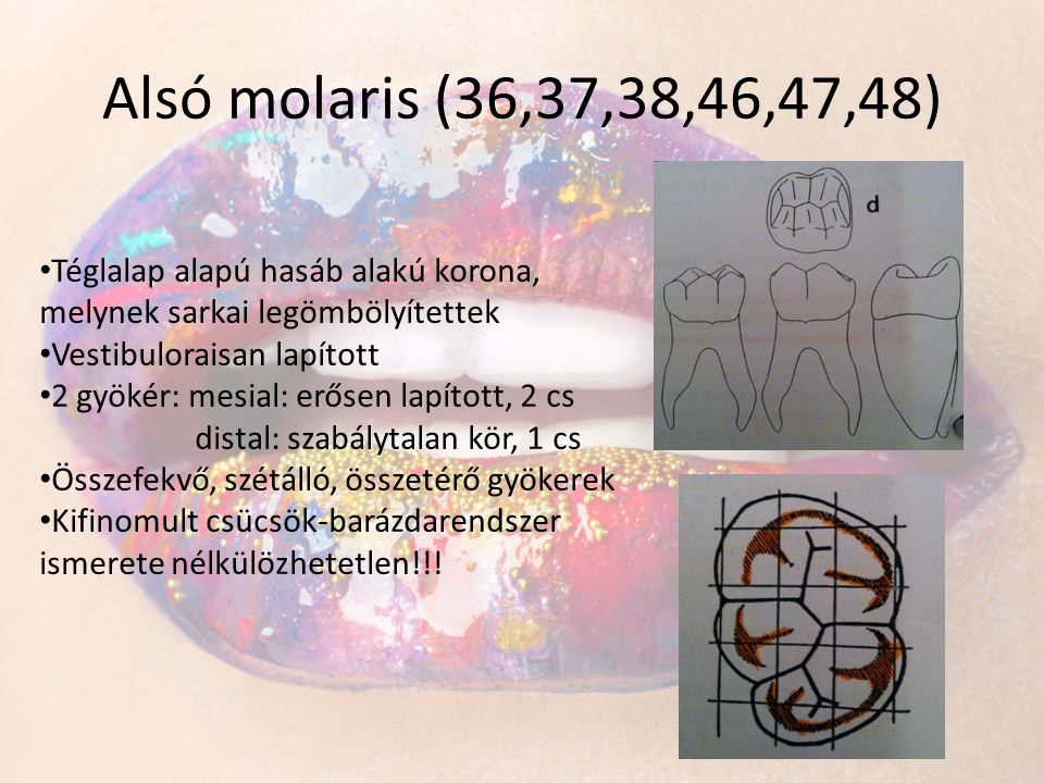 Alsó molaris (36,37,38,46,47,48) • Téglalap alapú hasáb alakú korona, melynek sarkai legömbölyítettek • Vestibuloraisan lapított • 2 gyökér: mesial: e