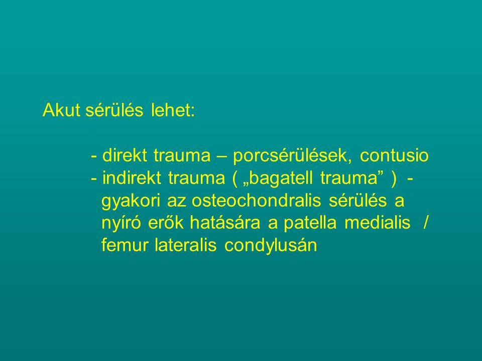 """Akut sérülés lehet: - direkt trauma – porcsérülések, contusio - indirekt trauma ( """"bagatell trauma"""" ) - gyakori az osteochondralis sérülés a nyíró erő"""