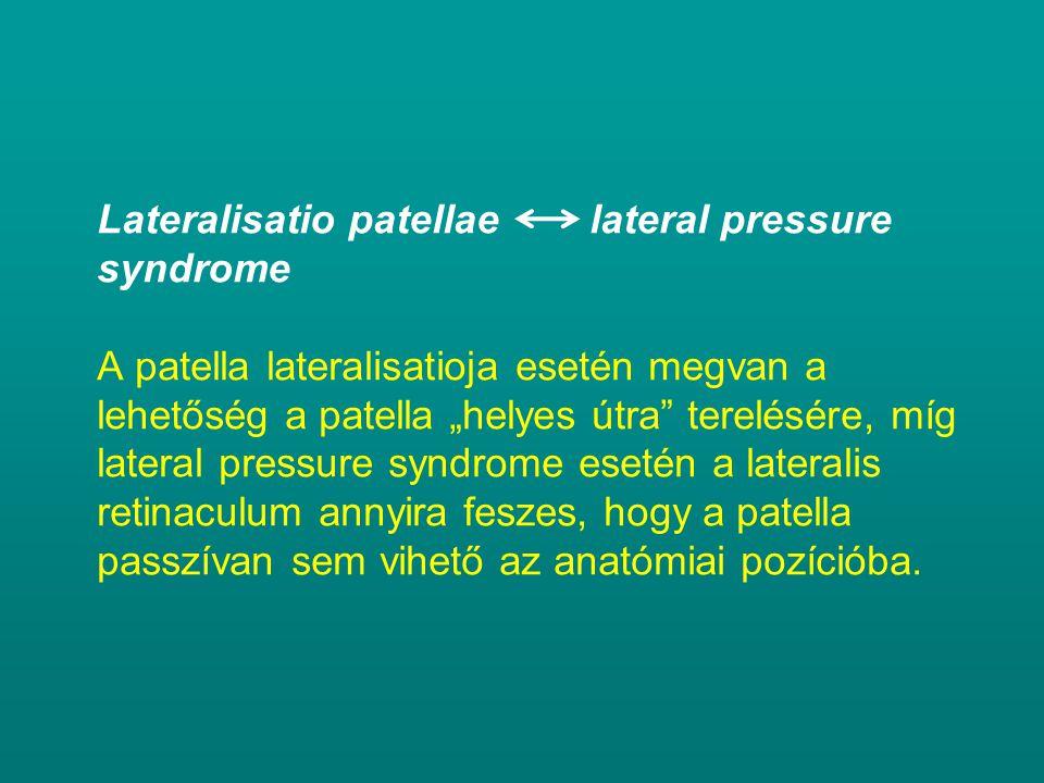 """Lateralisatio patellae lateral pressure syndrome A patella lateralisatioja esetén megvan a lehetőség a patella """"helyes útra"""" terelésére, míg lateral p"""