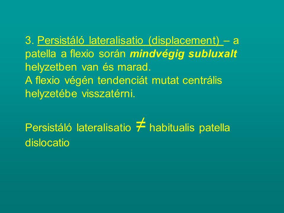 3. Persistáló lateralisatio (displacement) – a patella a flexio során mindvégig subluxalt helyzetben van és marad. A flexio végén tendenciát mutat cen