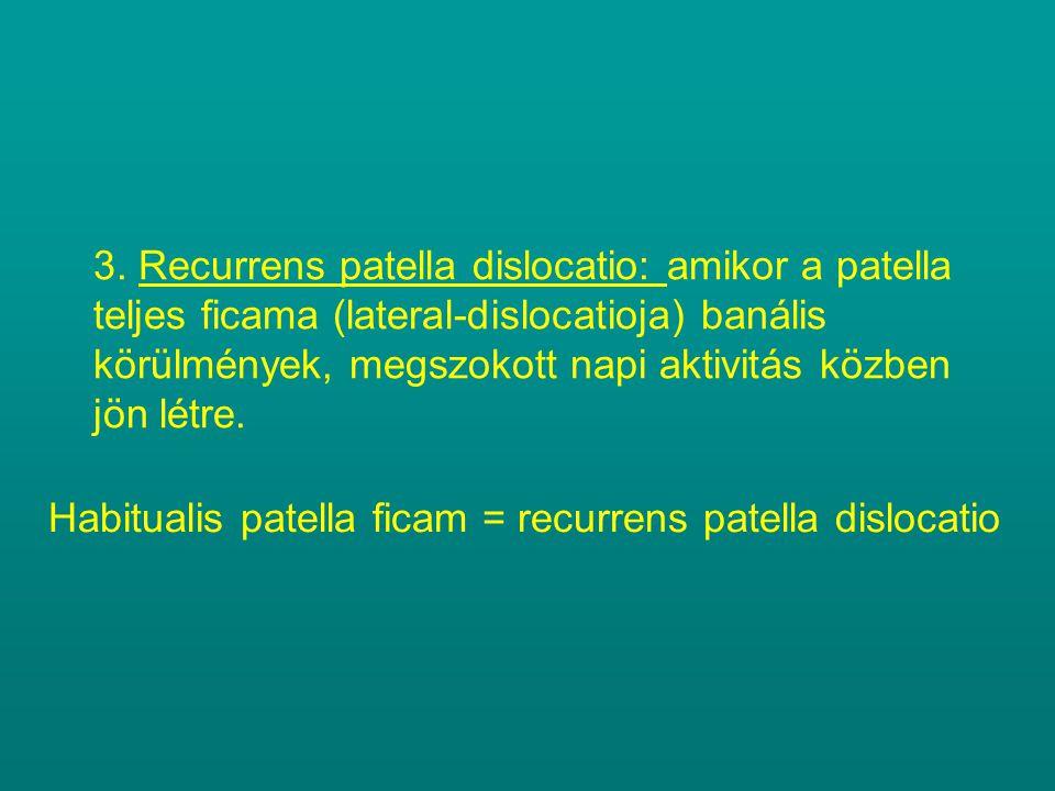 3. Recurrens patella dislocatio: amikor a patella teljes ficama (lateral-dislocatioja) banális körülmények, megszokott napi aktivitás közben jön létre