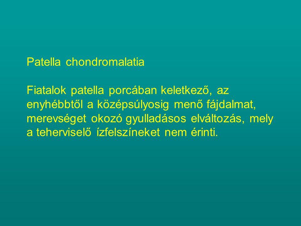 Patella chondromalatia Fiatalok patella porcában keletkező, az enyhébbtől a középsúlyosig menő fájdalmat, merevséget okozó gyulladásos elváltozás, mel