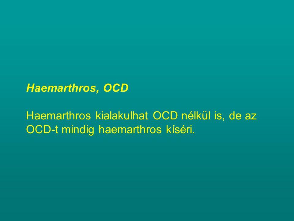 Haemarthros, OCD Haemarthros kialakulhat OCD nélkül is, de az OCD-t mindig haemarthros kíséri.
