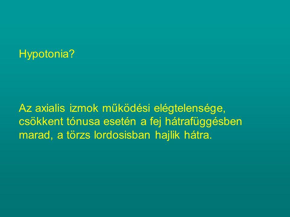 Hypotonia? Az axialis izmok működési elégtelensége, csökkent tónusa esetén a fej hátrafüggésben marad, a törzs lordosisban hajlik hátra.