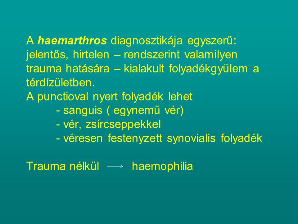 A haemarthros diagnosztikája egyszerű: jelentős, hirtelen – rendszerint valamilyen trauma hatására – kialakult folyadékgyülem a térdízületben. A punct