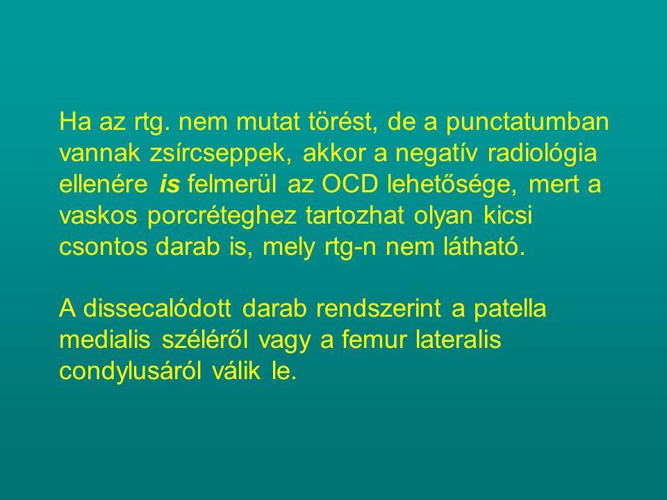 Ha az rtg. nem mutat törést, de a punctatumban vannak zsírcseppek, akkor a negatív radiológia ellenére is felmerül az OCD lehetősége, mert a vaskos po