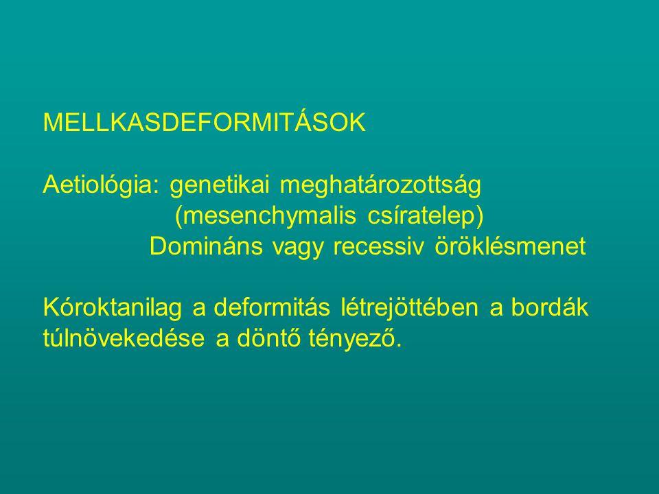 MELLKASDEFORMITÁSOK Aetiológia: genetikai meghatározottság (mesenchymalis csíratelep) Domináns vagy recessiv öröklésmenet Kóroktanilag a deformitás lé