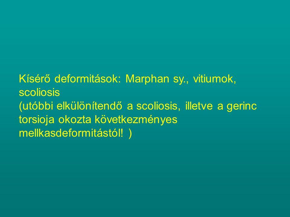 Kísérő deformitások: Marphan sy., vitiumok, scoliosis (utóbbi elkülönítendő a scoliosis, illetve a gerinc torsioja okozta következményes mellkasdeform