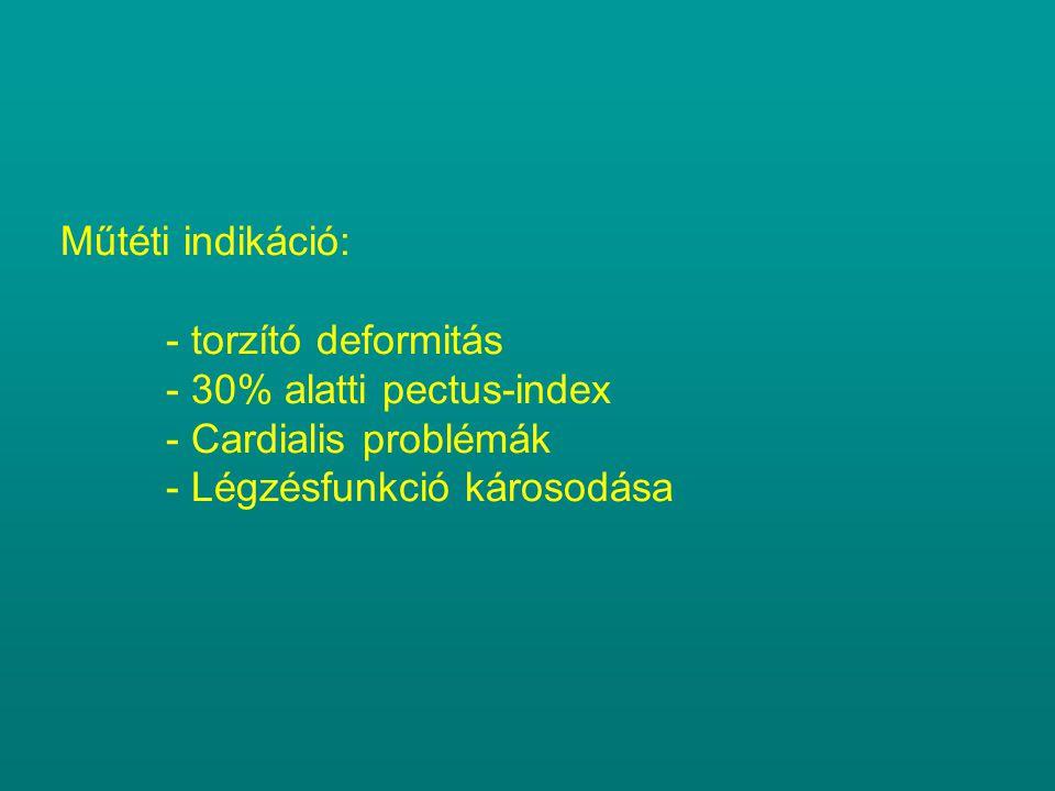 Műtéti indikáció: - torzító deformitás - 30% alatti pectus-index - Cardialis problémák - Légzésfunkció károsodása