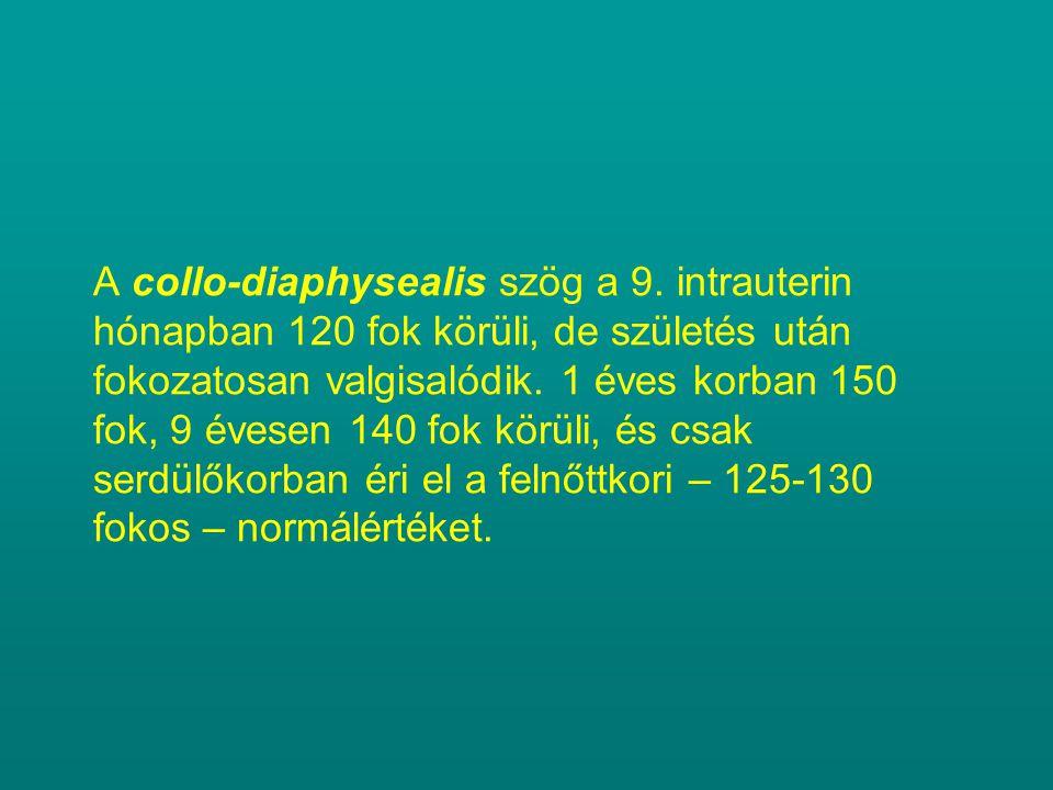 A collo-diaphysealis szög a 9. intrauterin hónapban 120 fok körüli, de születés után fokozatosan valgisalódik. 1 éves korban 150 fok, 9 évesen 140 fok