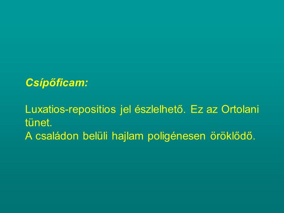 Csípőficam: Luxatios-repositios jel észlelhető. Ez az Ortolani tünet. A családon belüli hajlam poligénesen öröklődő.