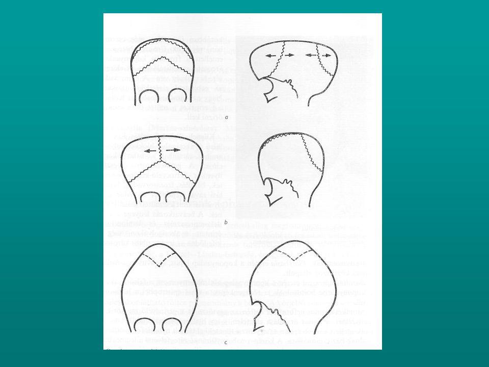 Formái: A.Impressziós deformitások Pectus excavatum - centralis szimmetrikus - aszimmetrikuks - centralis szimmetrikus + laposhát – szindróma - aszimmetrikus + laposhát – szindróma B.