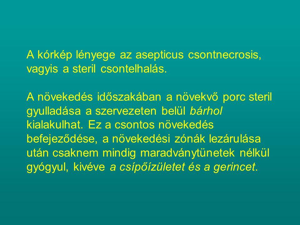 A kórkép lényege az asepticus csontnecrosis, vagyis a steril csontelhalás. A növekedés időszakában a növekvő porc steril gyulladása a szervezeten belü