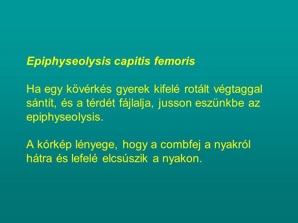 Epiphyseolysis capitis femoris Ha egy kövérkés gyerek kifelé rotált végtaggal sántít, és a térdét fájlalja, jusson eszünkbe az epiphyseolysis. A kórké