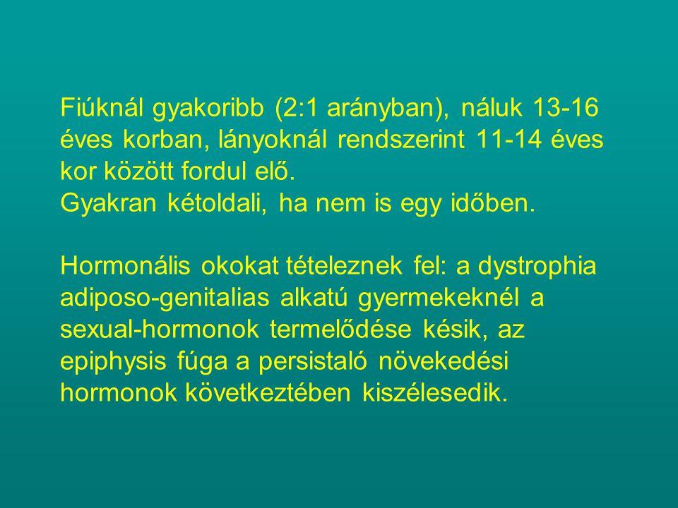 Fiúknál gyakoribb (2:1 arányban), náluk 13-16 éves korban, lányoknál rendszerint 11-14 éves kor között fordul elő. Gyakran kétoldali, ha nem is egy id