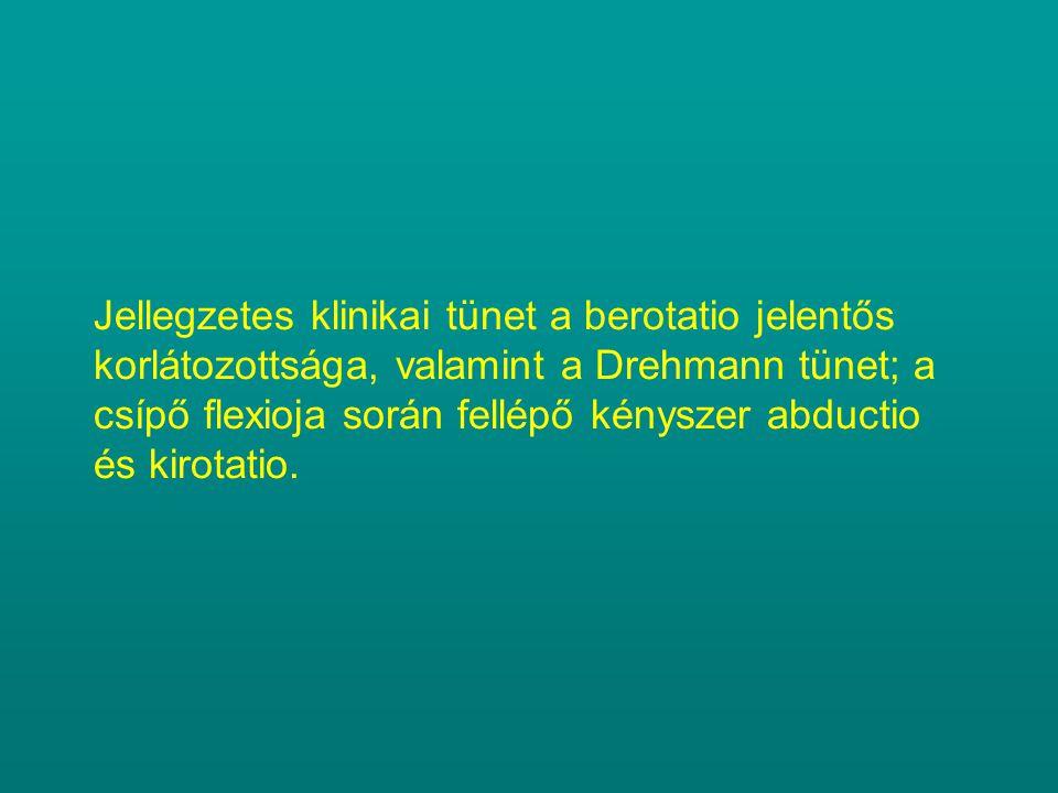 Jellegzetes klinikai tünet a berotatio jelentős korlátozottsága, valamint a Drehmann tünet; a csípő flexioja során fellépő kényszer abductio és kirota