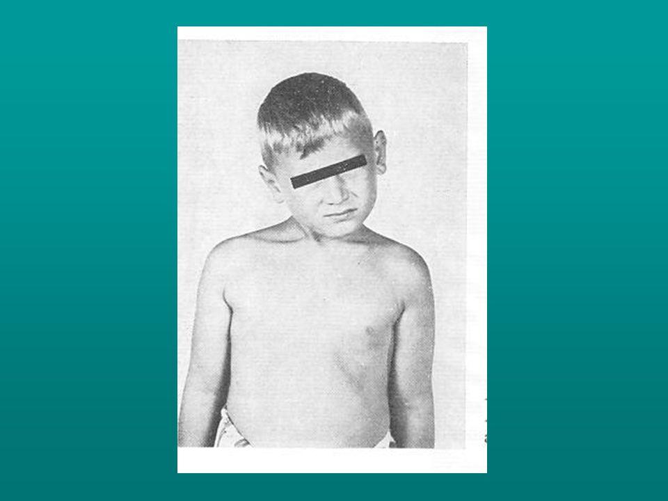Kezelés: - csípőtorna - terpeszpbetét - Pavlik kengyel vagy abductios készülék.