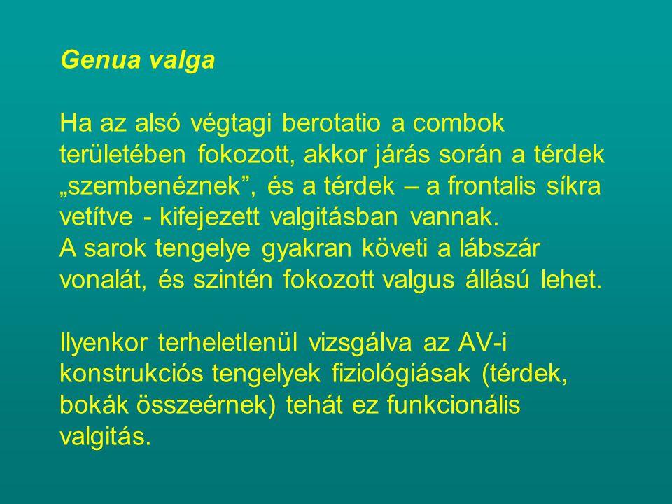 """Genua valga Ha az alsó végtagi berotatio a combok területében fokozott, akkor járás során a térdek """"szembenéznek"""", és a térdek – a frontalis síkra vet"""
