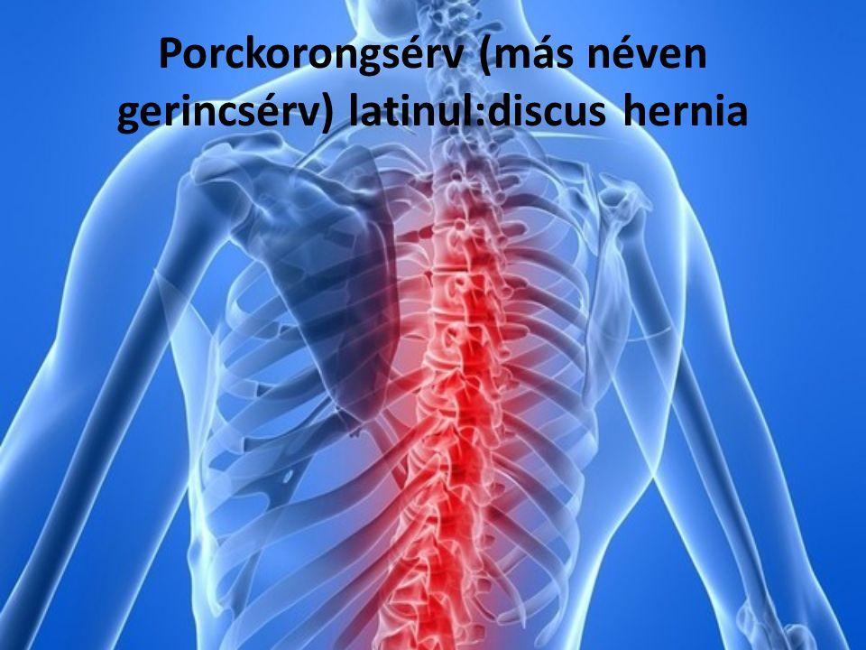 Porckorongsérv (más néven gerincsérv) latinul:discus hernia
