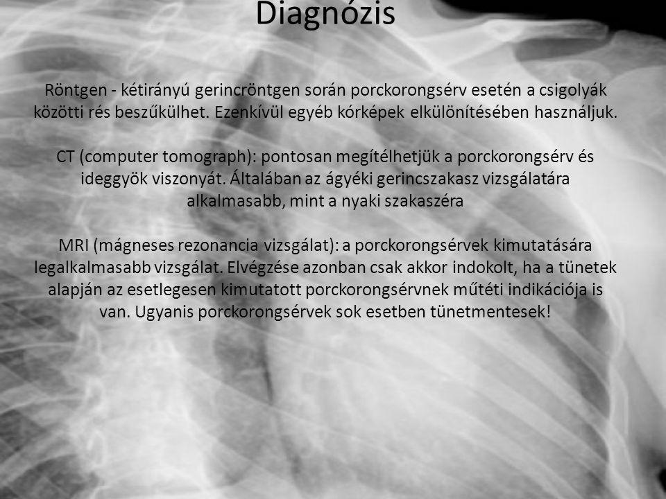 Diagnózis Röntgen - kétirányú gerincröntgen során porckorongsérv esetén a csigolyák közötti rés beszűkülhet.