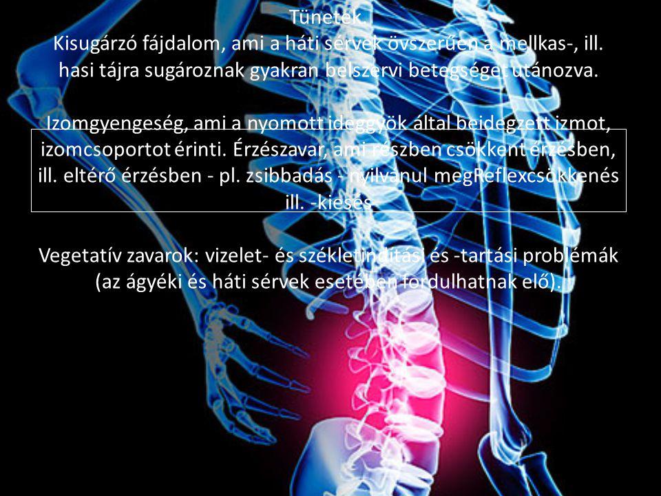 Tünetek.Kisugárzó fájdalom, ami a háti sérvek övszerűen a mellkas-, ill.