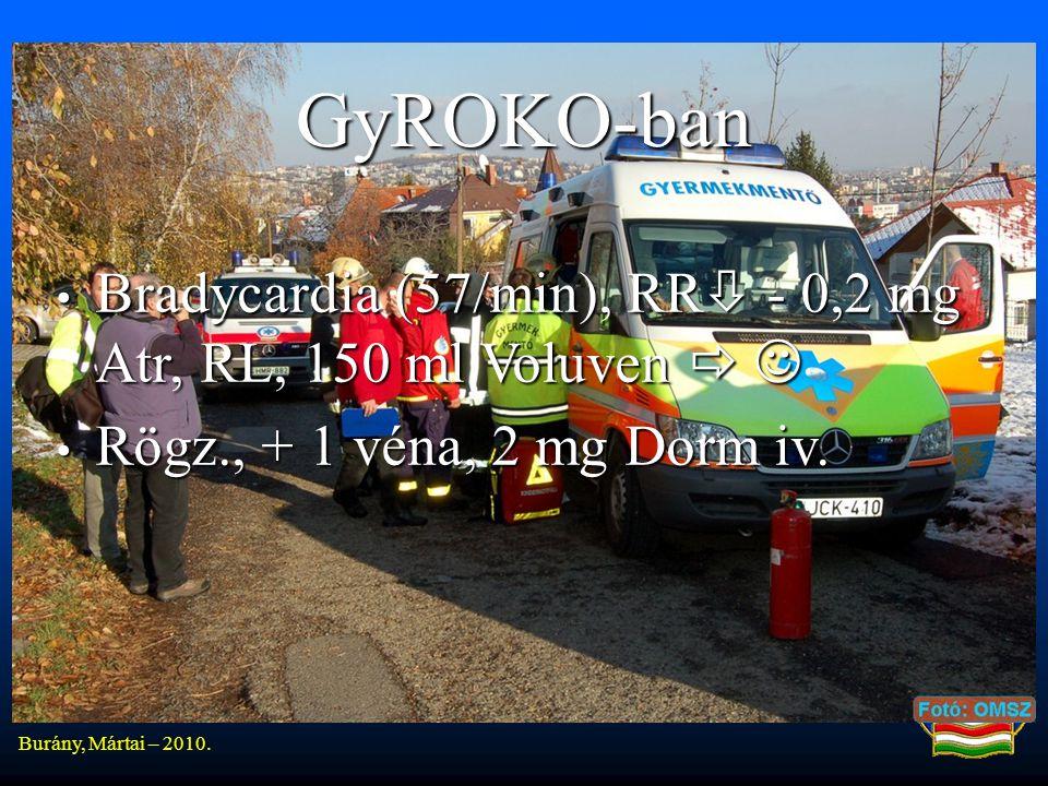 GyROKO-ban • Bradycardia (57/min), RR  - 0,2 mg Atr, RL, 150 ml Voluven   • Rögz., + 1 véna, 2 mg Dorm iv.