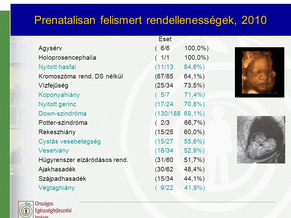 Prenatalisan felismert rendellenességek, 2010 Eset Agysérv( 6/6 100,0%) Holoprosencephalia( 1/1 100,0%) Nyitott hasfal (11/13 84,6%) Kromoszóma rend.