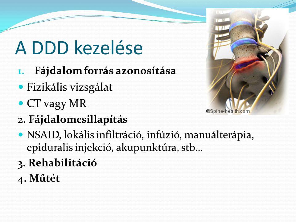 A DDD kezelése 1. Fájdalom forrás azonosítása  Fizikális vizsgálat  CT vagy MR 2. Fájdalomcsillapítás  NSAID, lokális infiltráció, infúzió, manuált