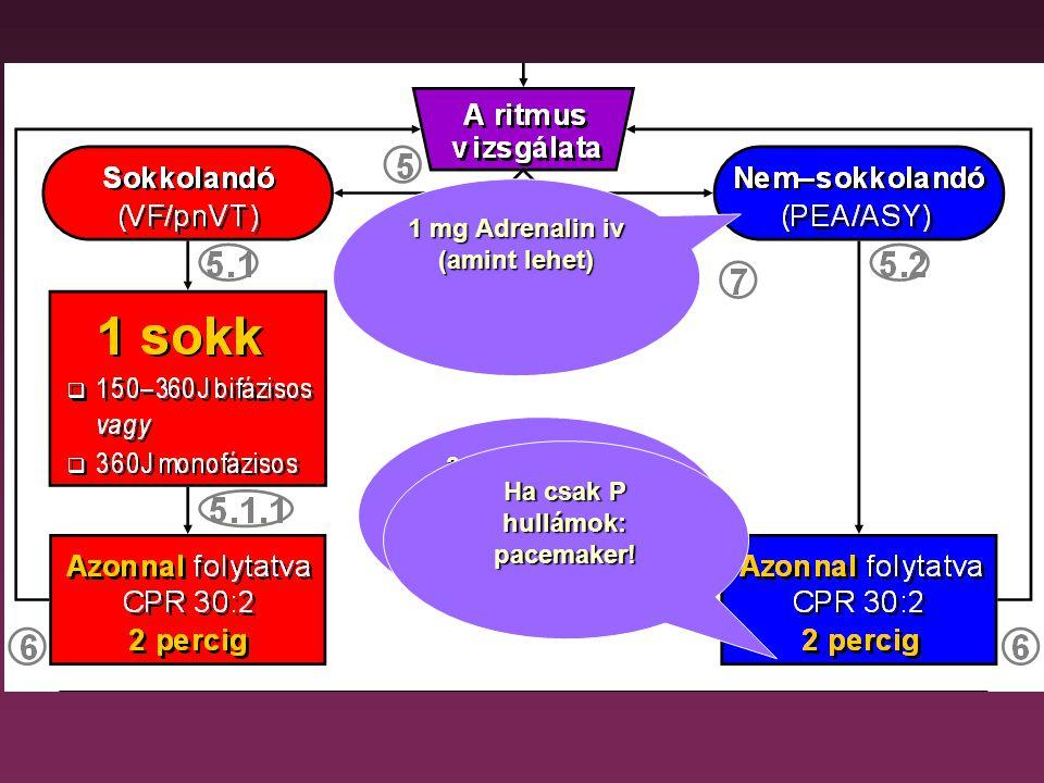 A defibrillálás lehetséges kimenetelei PNEA Visszatérő VF ASY (ASY) Rendezett ritmus ROSC (PNEA) VF Tartós VF #1 DC–S #2 DC–S#3 DC–S Új VF–epizód