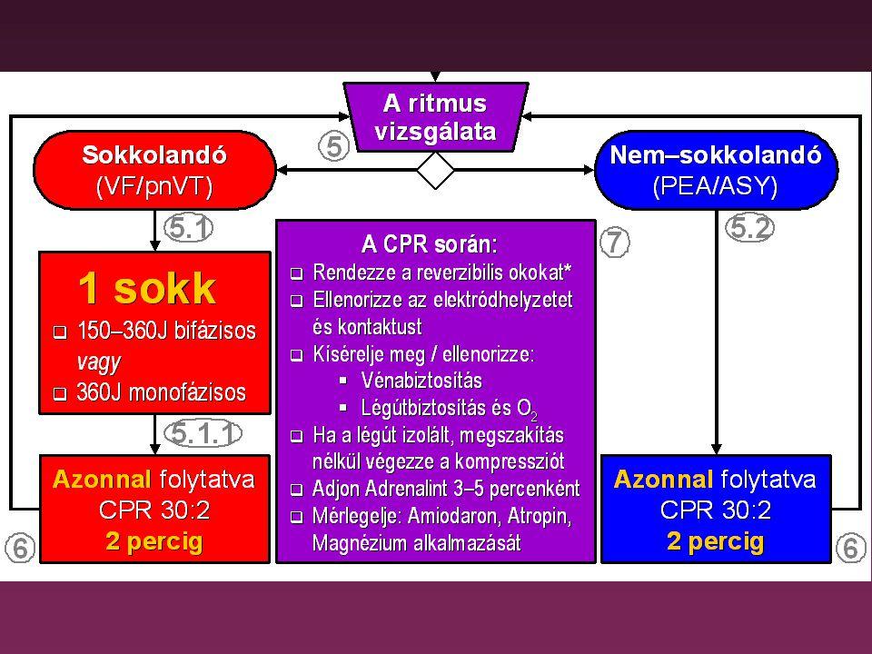 1 mg Adrenalin iv (amint lehet) 3 mg Atropin iv Ha csak P hullámok: pacemaker!