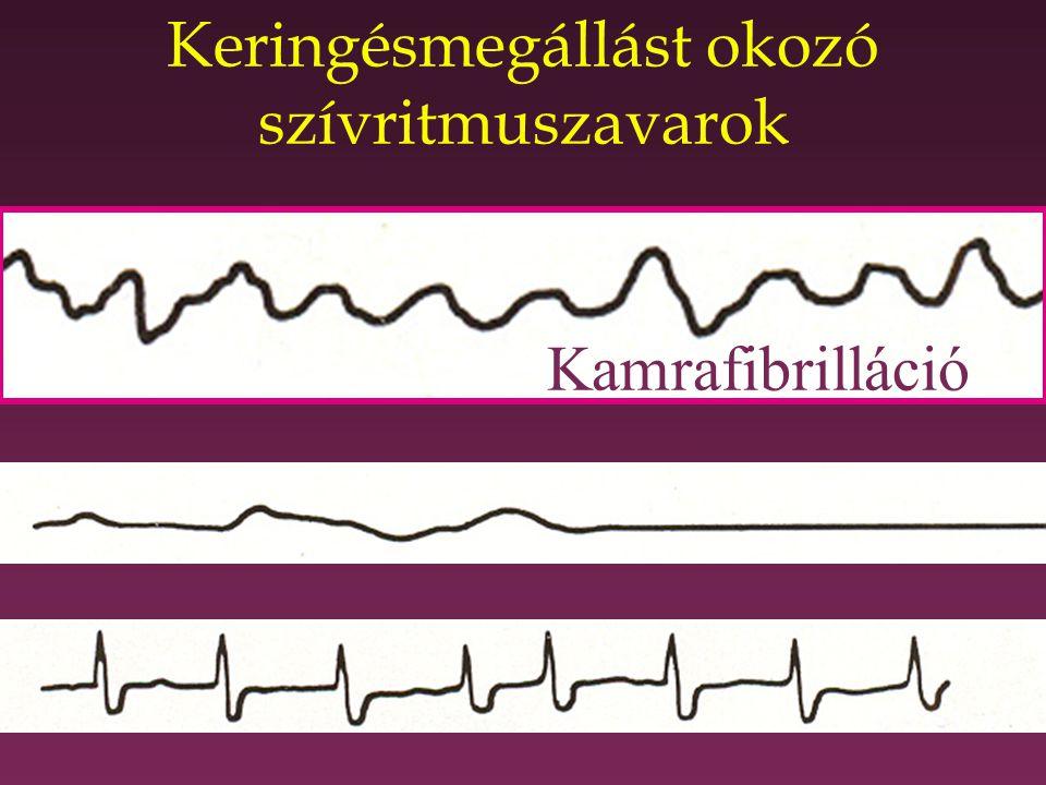 GŐBL – TÓTH 2006 A túlélési lánc Korai ACLS Korai de- fibrillálás Korai CPR Korai segélyhívás